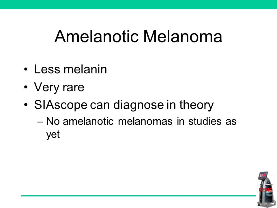 Amelanotic Melanoma Less melanin Very rare SIAscope can diagnose in theory –No amelanotic melanomas in studies as yet
