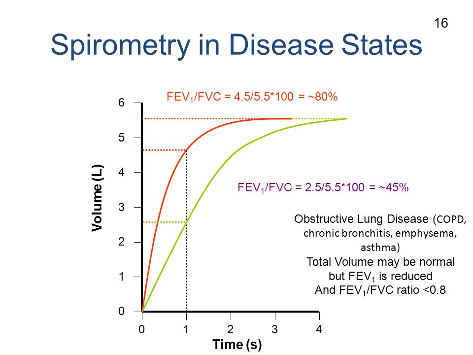 Spirometry in Disease States Volume (L) Time (s) Obstructive Lung Disease ( COPD, chronic bronchitis, emphysema, asthma) Total Volume may be normal but FEV 1 is reduced And FEV 1 /FVC ratio <0.8 FEV 1 /FVC = 4.5/5.5*100 = ~80% FEV 1 /FVC = 2.5/5.5*100 = ~45% 16