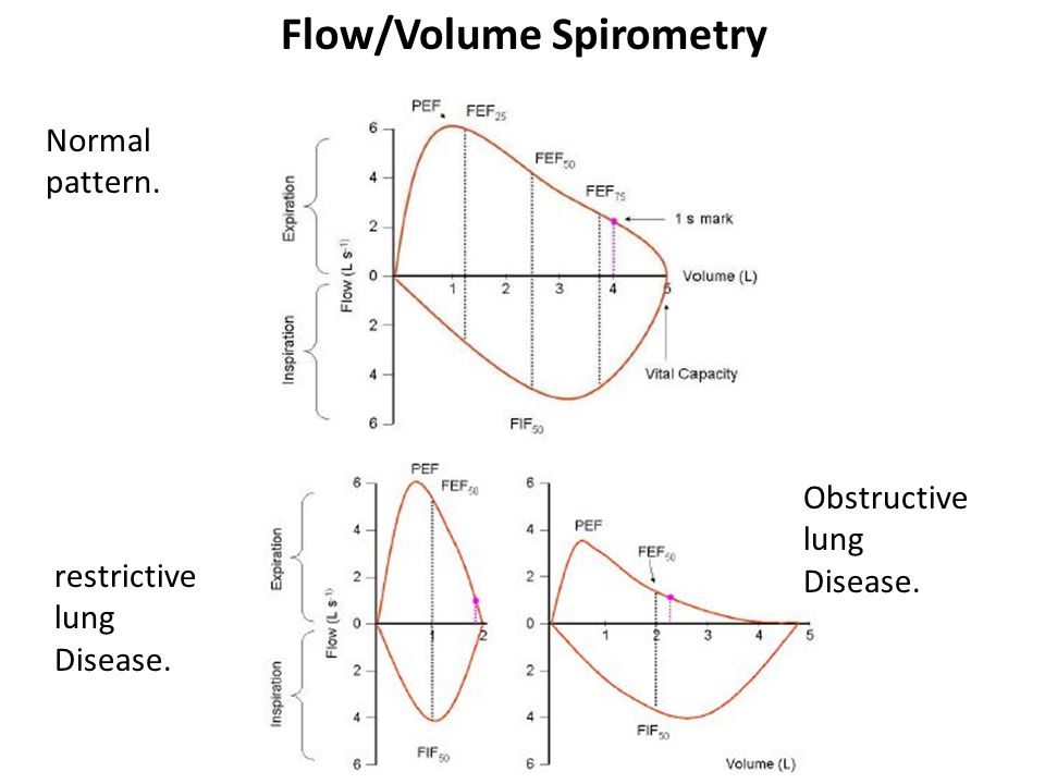Flow/Volume Spirometry restrictive lung Disease. Obstructive lung Disease. Normal pattern.