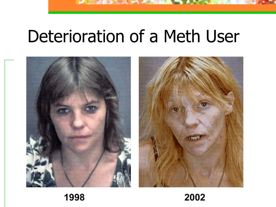 Deterioration of a Meth User