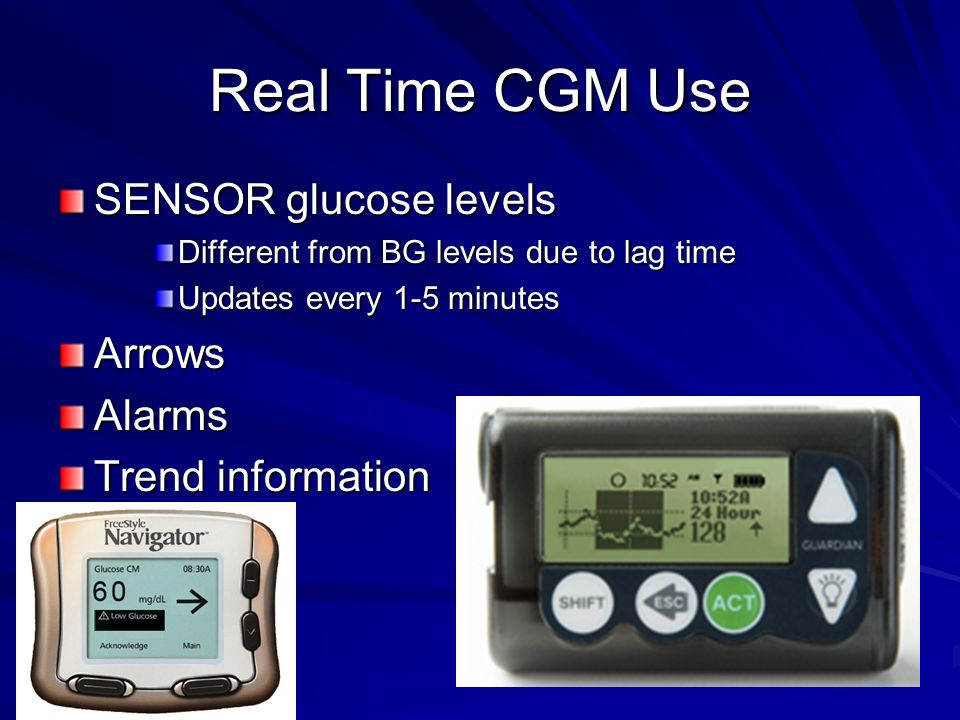 Real Time CGM Use SENSOR glucose levels Different from BG levels due to lag time Updates every 1-5 minutes ArrowsAlarms Trend information
