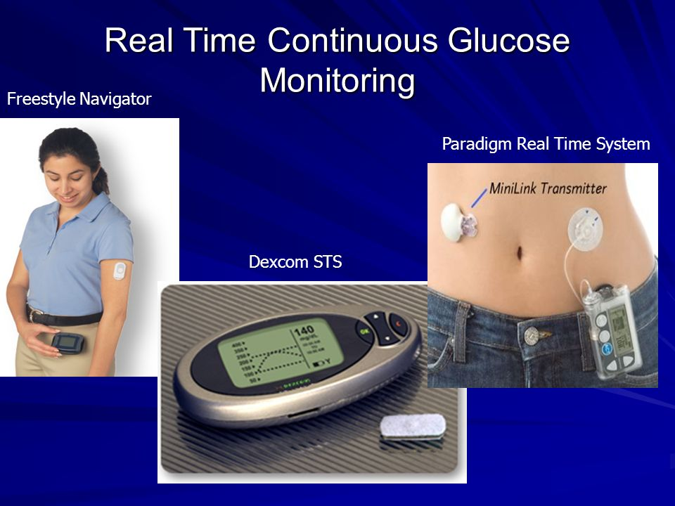 Real Time Continuous Glucose Monitoring Freestyle Navigator Dexcom STS Paradigm Real Time System