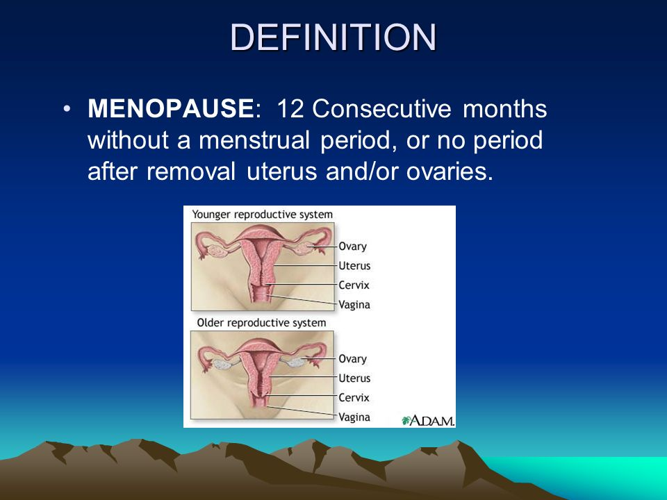 2 DEFINITION MENOPAUSE: 12 Consecutive months without a menstrual period,  or no period after removal uterus and/or ovaries.