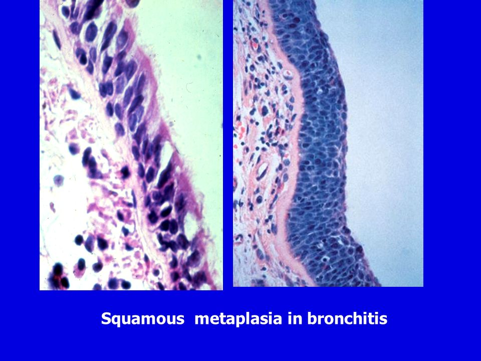 Squamous metaplasia in bronchitis