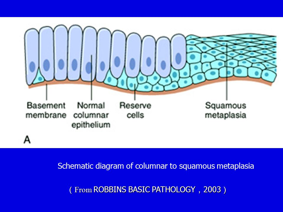 Schematic diagram of columnar to squamous metaplasia ( From ROBBINS BASIC PATHOLOGY , 2003 )