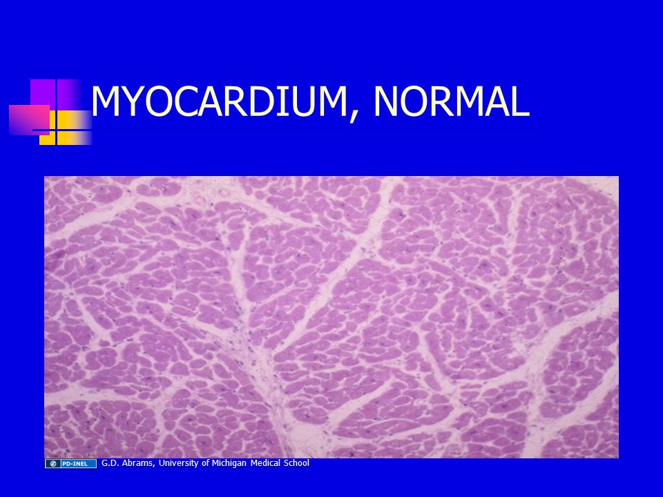MYOCARDIUM, NORMAL G.D. Abrams, University of Michigan Medical School G.D.