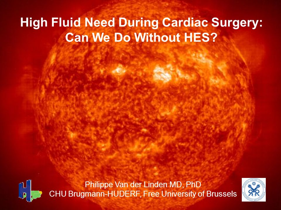 High Fluid Need During Cardiac Surgery: Can We Do Without