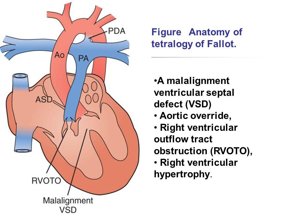Anatomy And Terminology Ao Aorta La Left Atrium Lv Left
