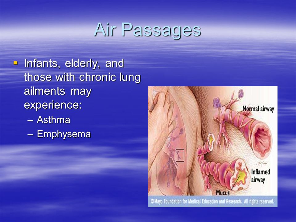 Air Passages  Infants, elderly, and those with chronic lung ailments may experience: –Asthma –Emphysema