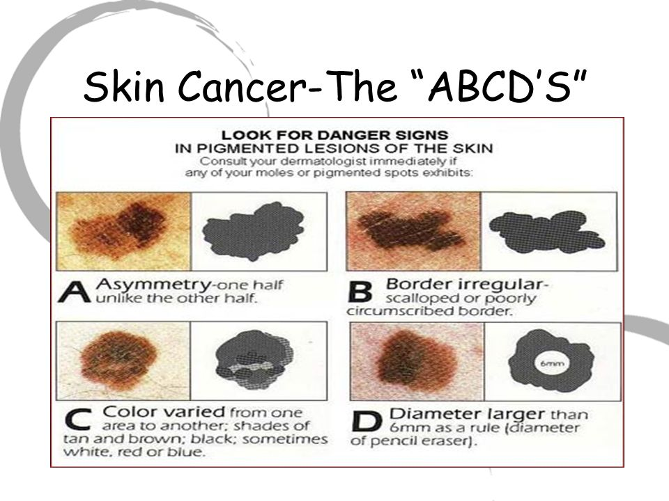 Skin Cancer-The ABCD'S