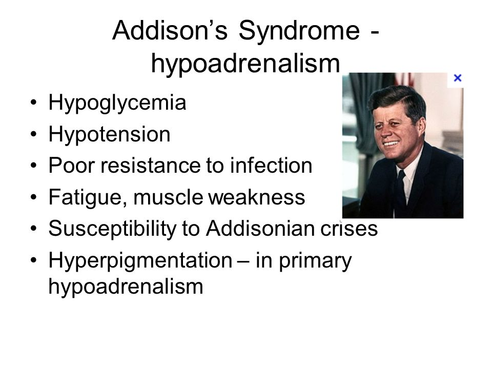 Addison's Syndrome - hypoadrenalism Hypoglycemia Hypotension Poor resistance to infection Fatigue, muscle weakness Susceptibility to Addisonian crises Hyperpigmentation – in primary hypoadrenalism