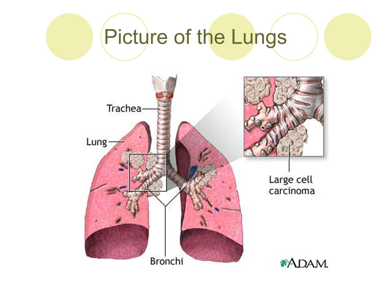 presenting lung cancer. lung cancer: defined  uncontrolled growth