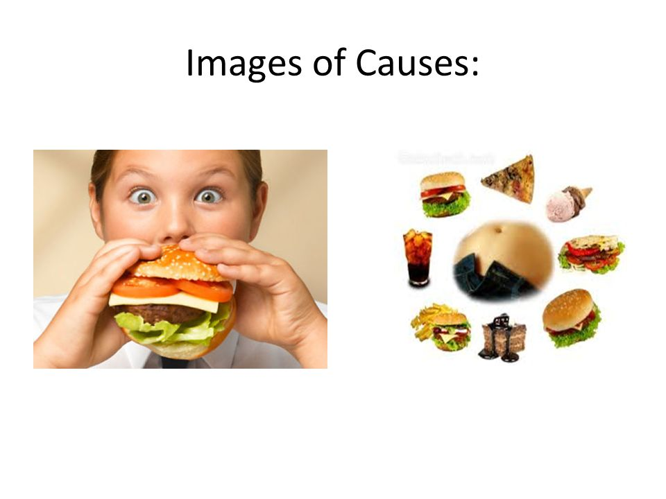 Images of Causes: