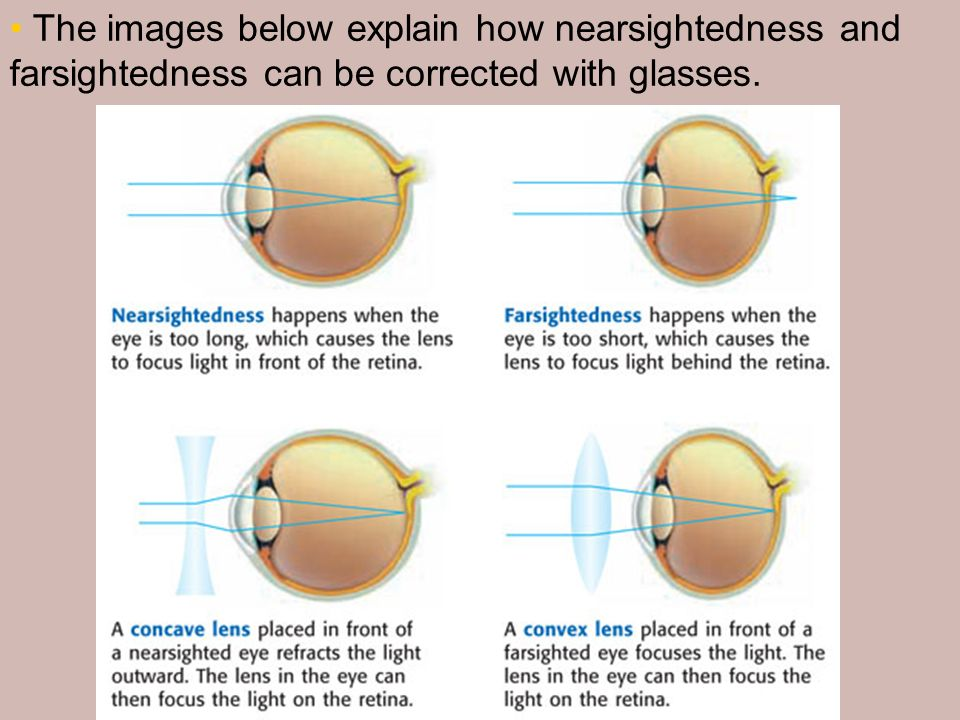 The images below explain how nearsightedness and farsightedness can be corrected with glasses.