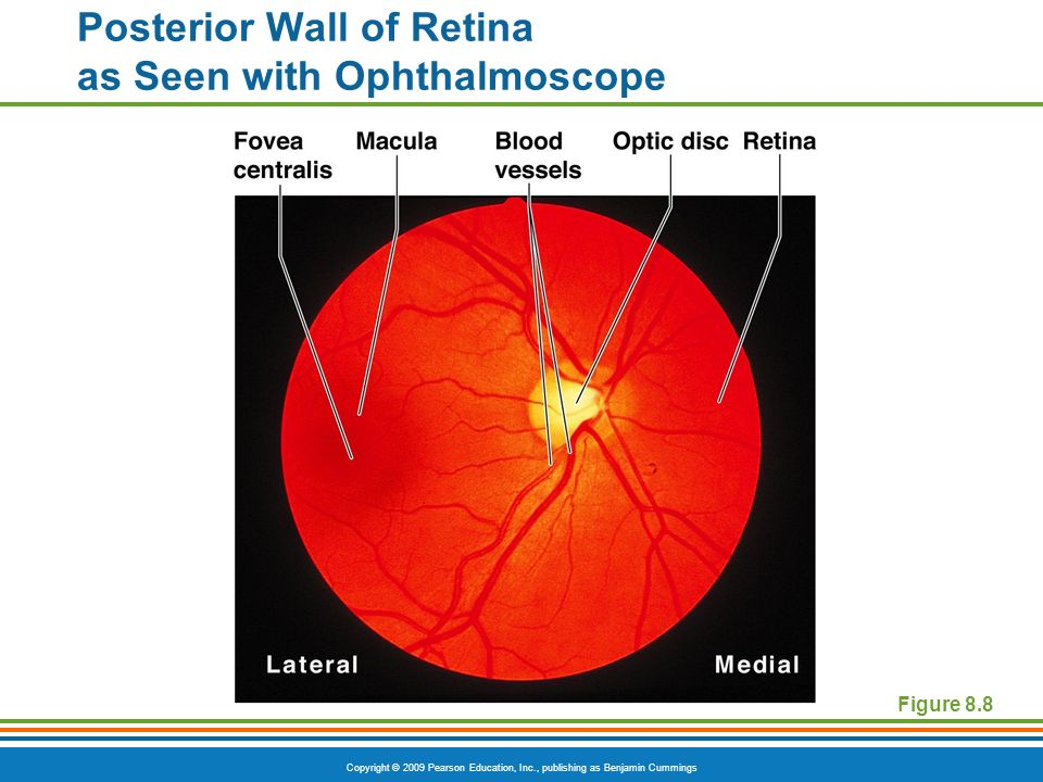 Copyright © 2009 Pearson Education, Inc., publishing as Benjamin Cummings Posterior Wall of Retina as Seen with Ophthalmoscope Figure 8.8
