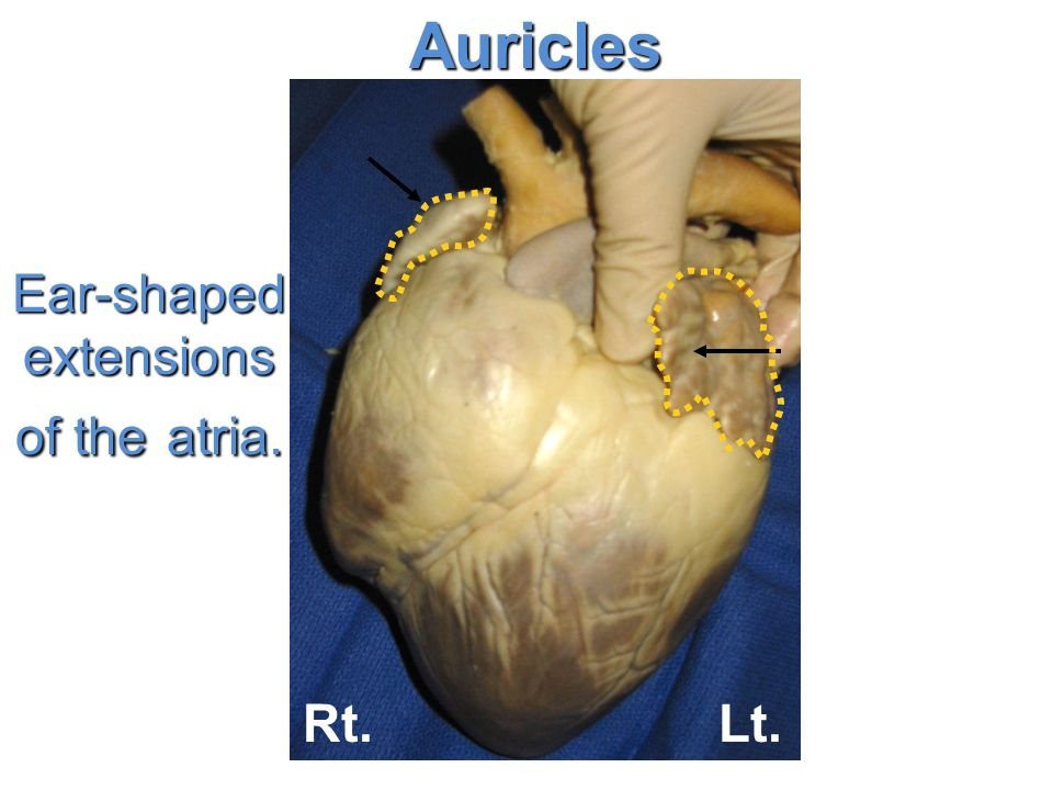 Heart Dissection Base Apex Auricles Rt Ear Shaped Extensions Of