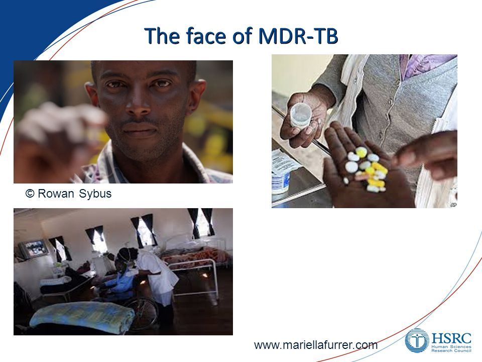 The face of MDR-TB © Rowan Sybus