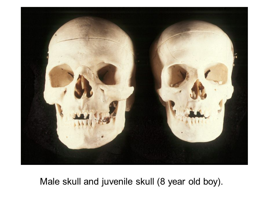 Sexual dimorphism in human skull