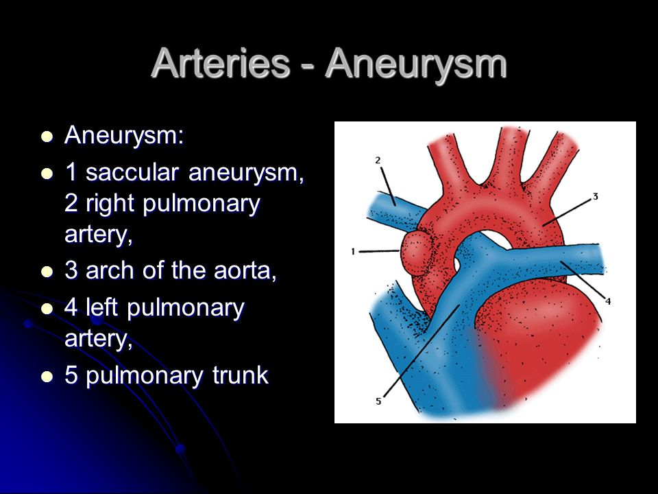 Arteries - Aneurysm Aneurysm: Aneurysm: 1 saccular aneurysm, 2 right pulmonary artery, 1 saccular aneurysm, 2 right pulmonary artery, 3 arch of the aorta, 3 arch of the aorta, 4 left pulmonary artery, 4 left pulmonary artery, 5 pulmonary trunk 5 pulmonary trunk