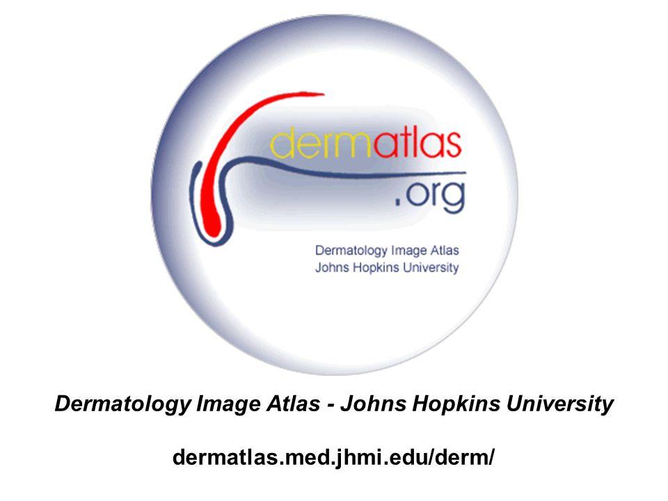 On-line Atlas