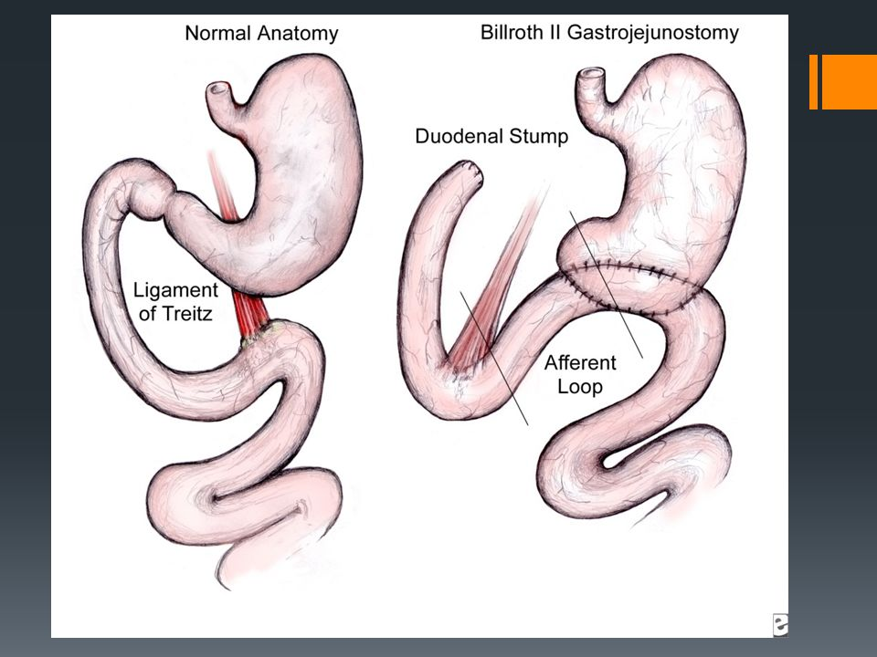 Post Gastrectomy Syndrome By Karl 1functional Efferent Afferent