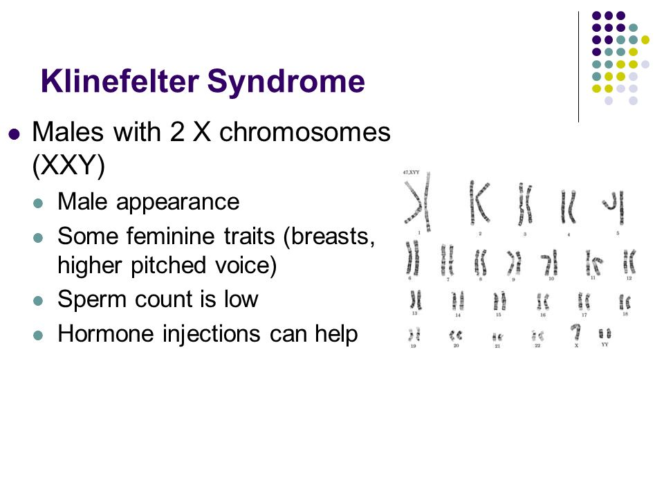 Klinefelter Syndrome Males with 2 X chromosomes (XXY) Male appearance Some feminine traits (breasts, higher pitched voice) Sperm count is low Hormone injections can help