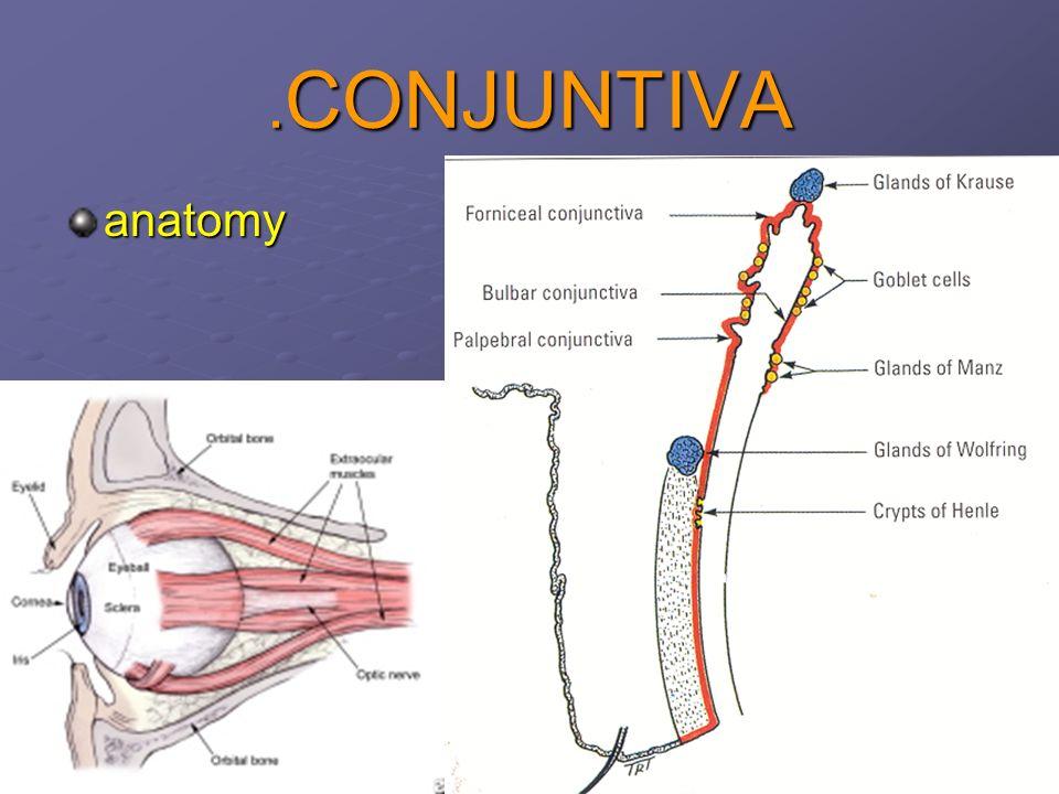 1 CONJUNTIVA. 2 RED EYE CONJUNCTIVA 1.Conjunctivitis 2.Chronic ...