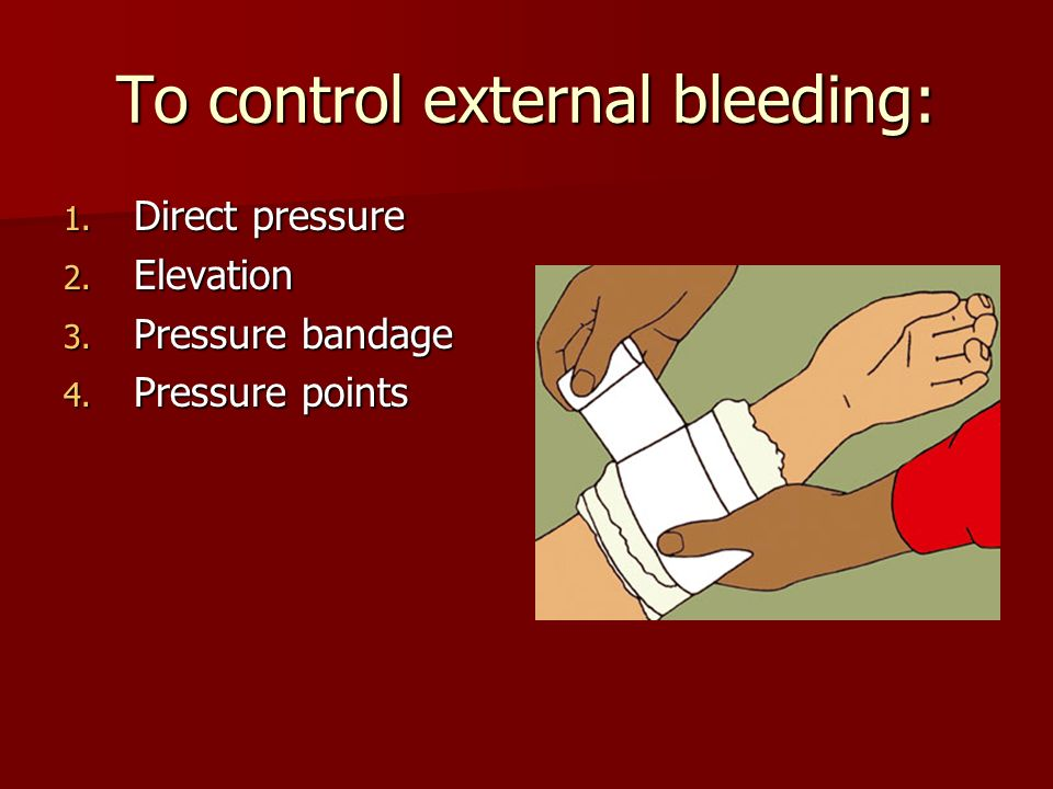 To control external bleeding: 1. Direct pressure 2.