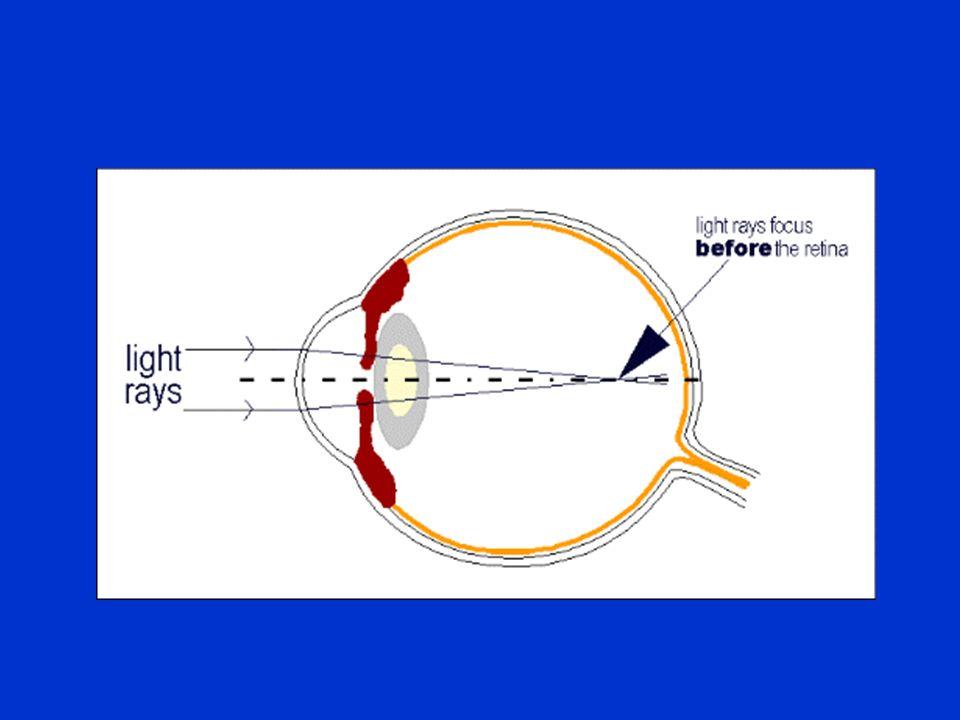 Optics Professor Damian Czepita Department of Ophthalmology