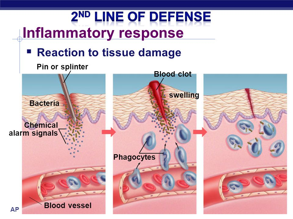 AP Biology Inflammatory response  Triggered by damage to tissue  triggers local non-specific inflammatory response  release histamines  capillaries dilate, more permeable (leaky)  increase blood supply  delivers WBC, RBC, platelets, clotting factors  fight pathogens  clot formation  accounts for swelling, redness & heat of inflammation & infection