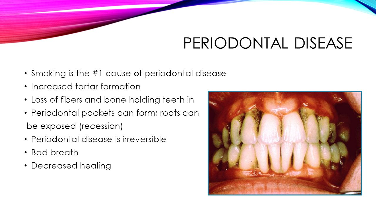 tobacco cessation. side effects of tobacco use periodontal disease