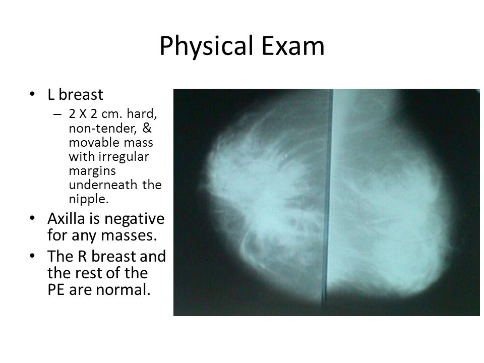 Movable breast mass