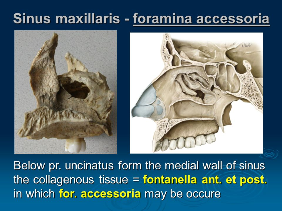 MAXILLA Upper jaw.  Anatomy (repetition), widespread description ...