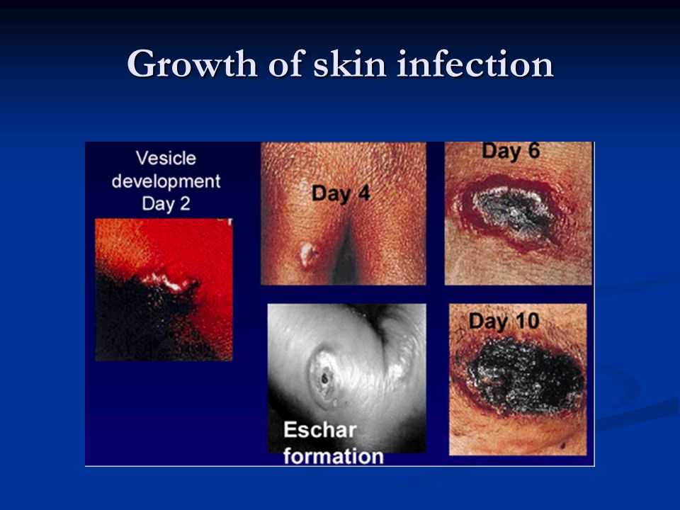 Growth of skin infection