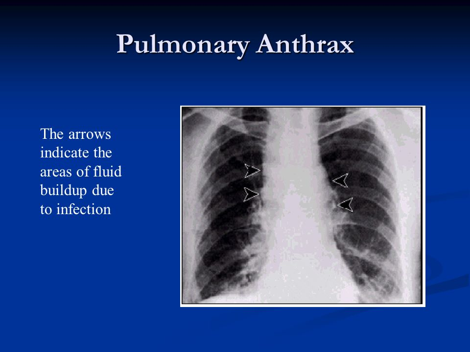 Pulmonary Anthrax The arrows indicate the areas of fluid buildup due to infection