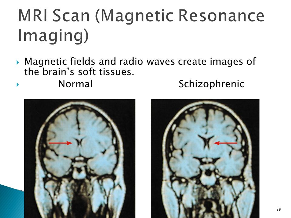  Magnetic fields and radio waves create images of the brain's soft tissues.