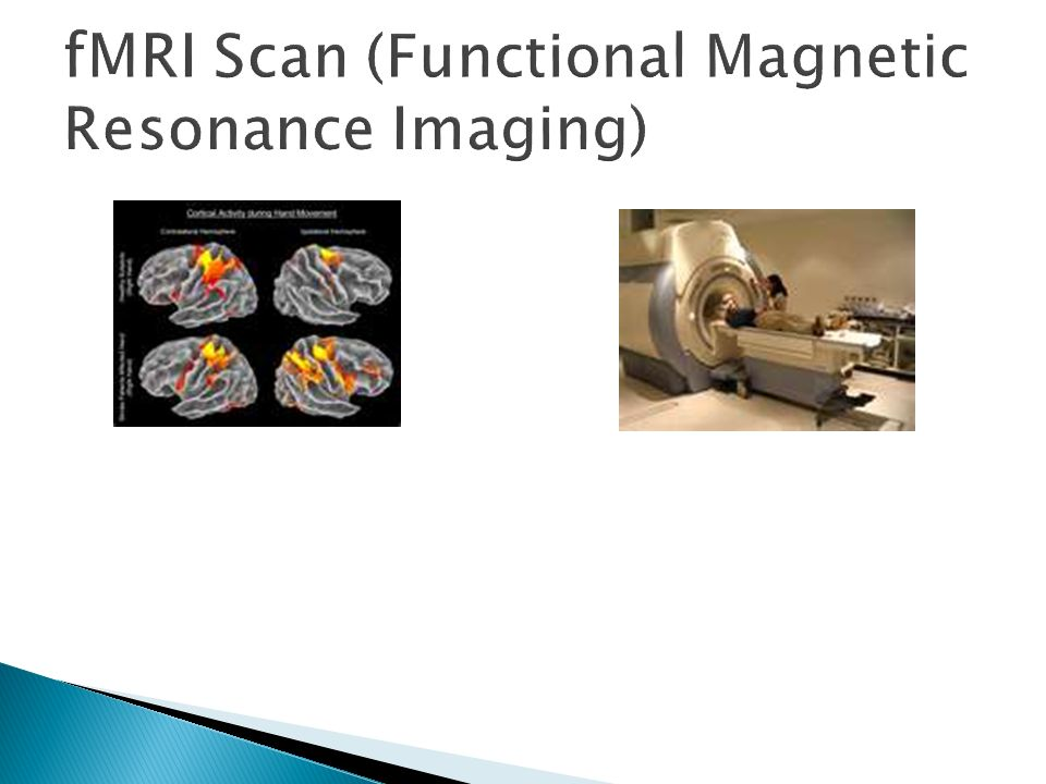 fMRI Scan (Functional Magnetic Resonance Imaging)