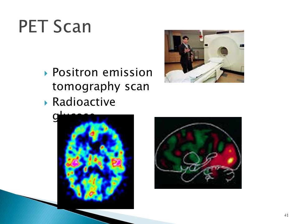  Positron emission tomography scan  Radioactive glucose 41 PET Scan