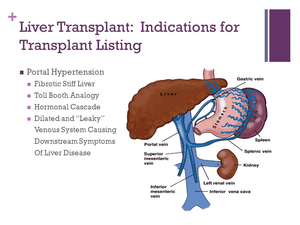 Liver Transplantation For Psc Patients A Transplant Surgeons