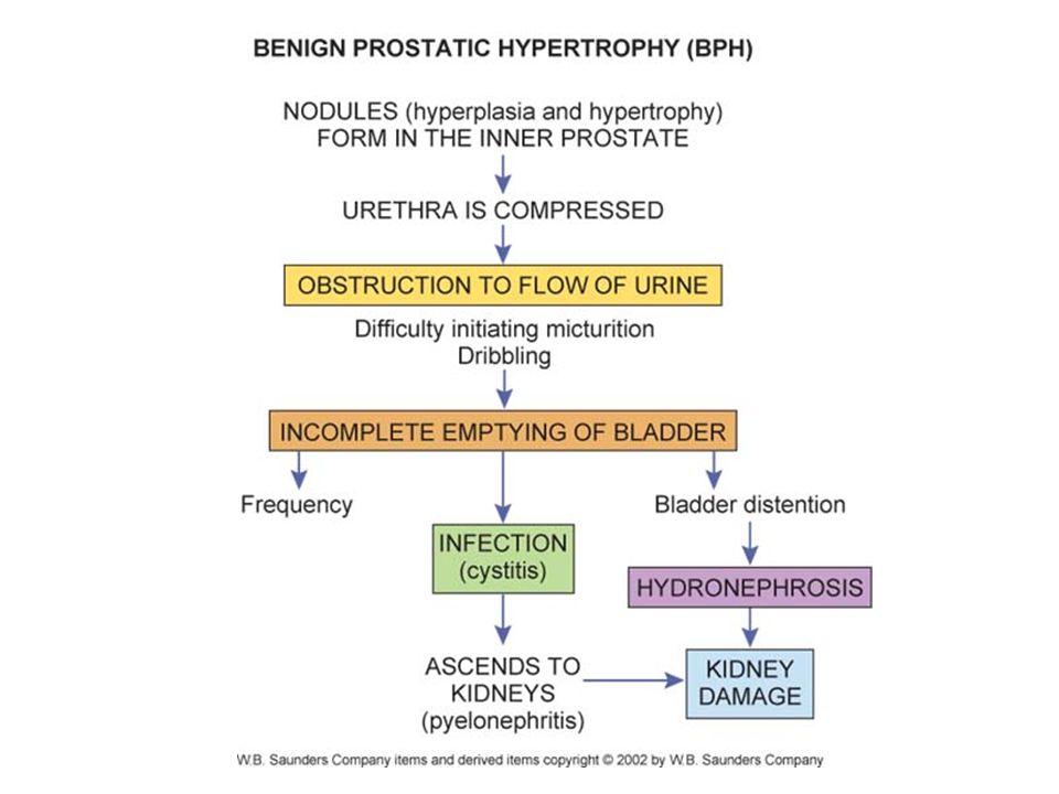 benign prostatic hyperplasia pathophysiology ppt)