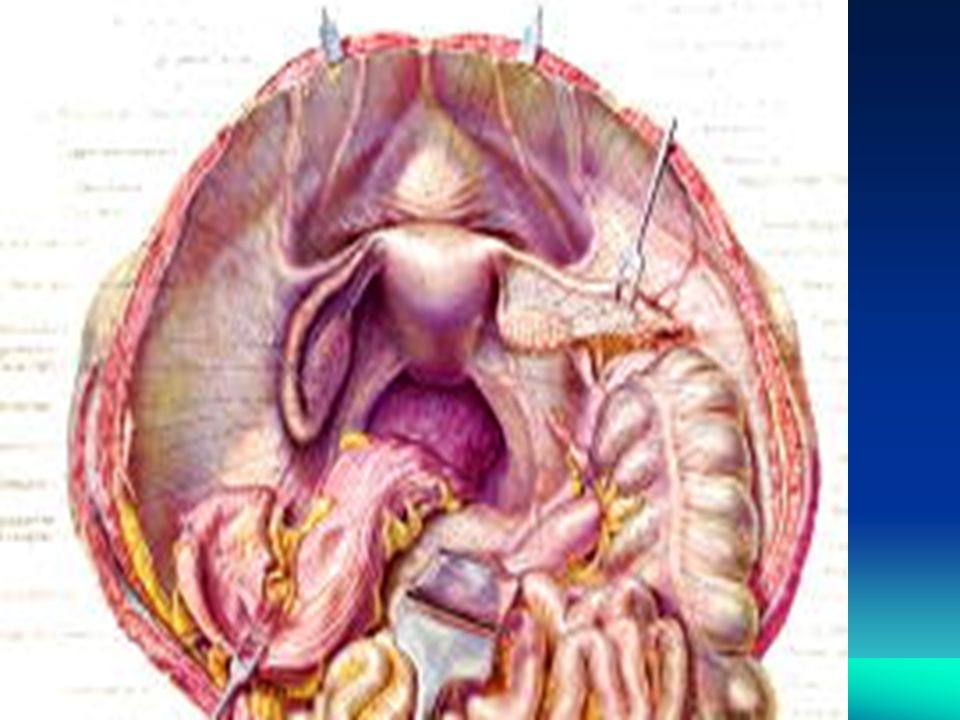 Uterosacral Suspension Educational Objectives This Lecture Will