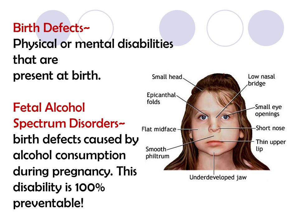 fetal alcohol spectrum disorder Foetal alcohol spectrum disorder (fasd) is the most common, non-genetic cause of learning disability in the uk (plant, 1985 autti-ramo, 2002 british medical association, 2007) research suggests that at least 7,000 babies are born every year in the uk with foetal alcohol spectrum disorder.
