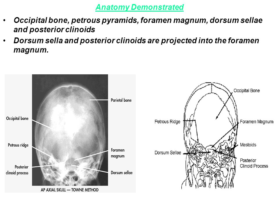 Lecture (27). Radiography of cranial Bones –Basic 0°Occipito ...