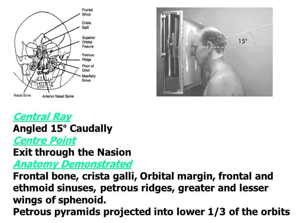 Lecture 27 Radiography Of Cranial Bones Basic 0occipito