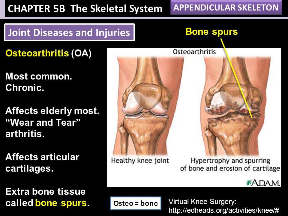 appendicular skeleton disorders