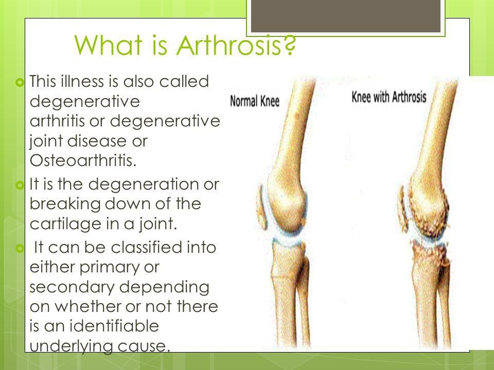 arthrosis)
