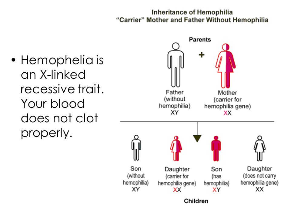 Hemophelia is an X-linked recessive trait. Your blood does not clot properly.
