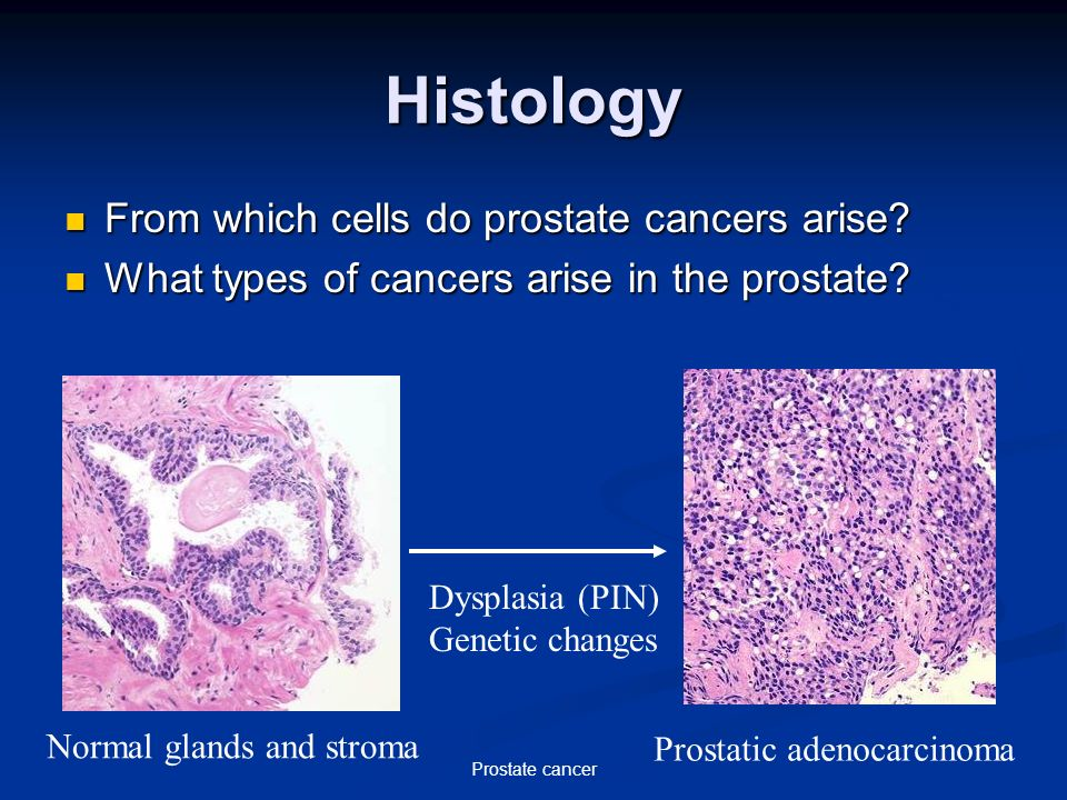 histology of prostate cancer)