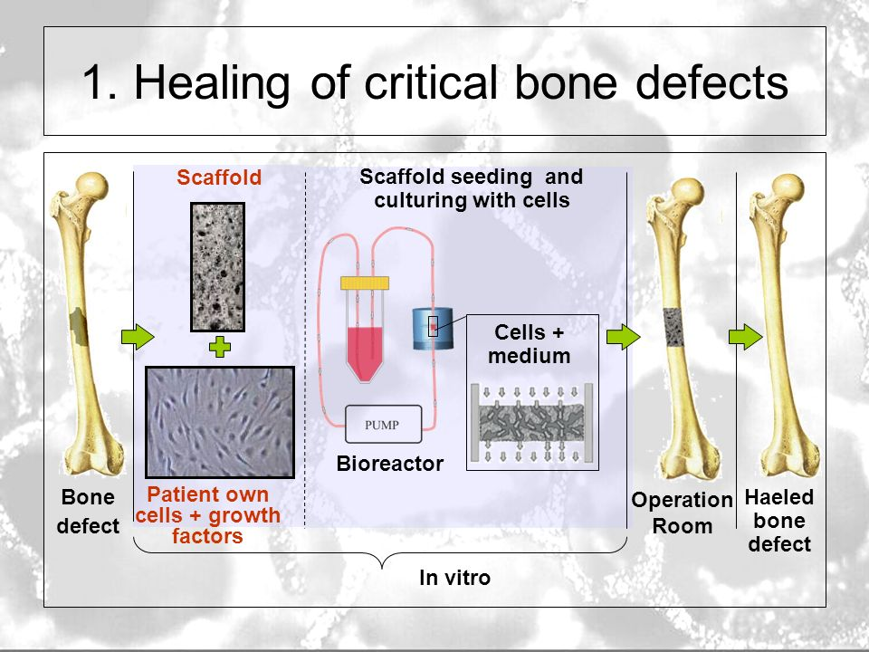 Characterization Of Porous Scaffold Materials For Bone Tissue Engineering Saartje Impens Micro Ct Symposium 31 05 Ppt Download