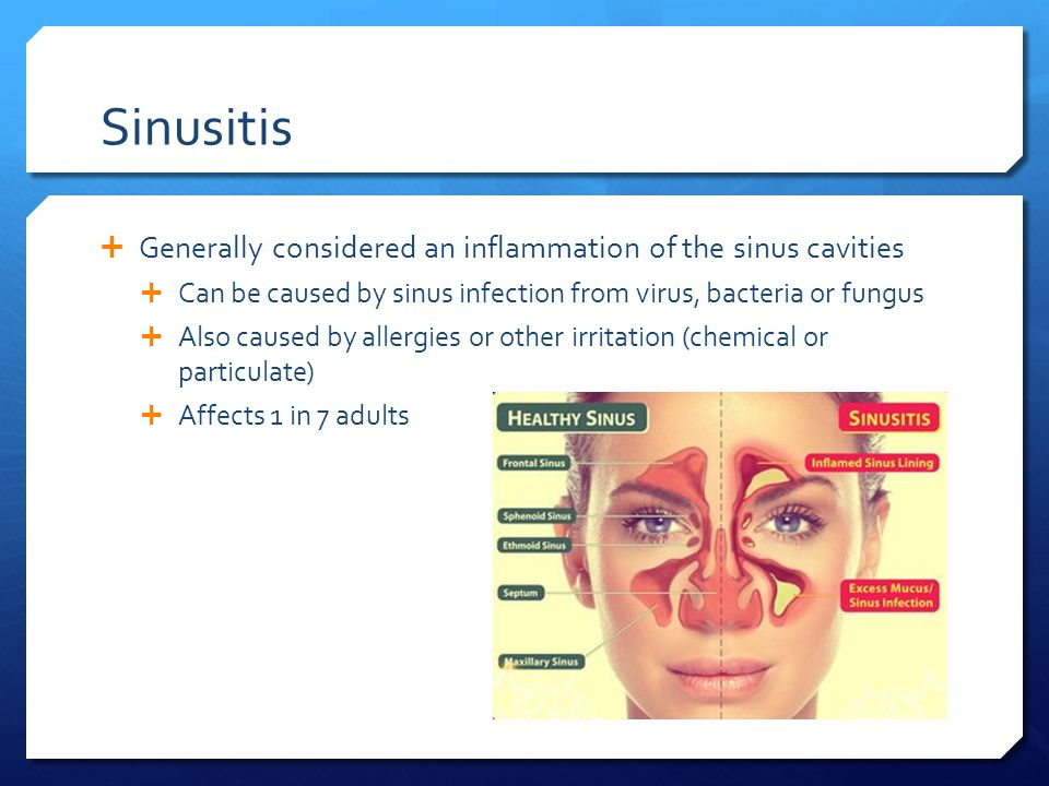 Chronic Sinusitis Robert Walsh. Sinus Anatomy  The Paranasal ...